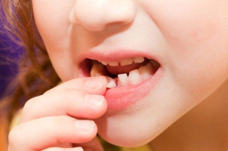 Нет передних зубов как разговаривать