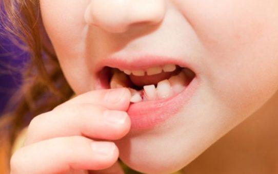 молочные зубы детей